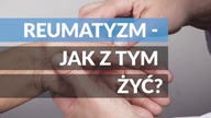 TO WIDEO. Reumatyzm jak z tym żyć? https://towideo.pl/ https://www.facebook.com/towideo/ https://twitter.com/towideo