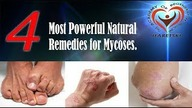 4 Most Powerful Natural Remedies for Mycoses.   Shop The Academy of Regenerative Medicine https://shop.medycynaludowa.com  Address: Plac Dworcowy 2G, 58-160 Swiebodzice, Poland Website: www.acadregmed.com  Phone, Viber, WhatsApp +48732027579 Contact information RUSSIA Address: Russia,  Aliaksandr Haretski E-mail: director@acadregmed.com  Tel., Viber, WhatsApp: +79853878302 A sensation! At the Academy of Regenerative Medicine http://www.acadregmed.com, a method was created that works like an elixir of youth. After its application, you can significantly extend your life and fight against most incurable and even genetic diseases. It allows for non-surgical regeneration of organs and body systems, rejuvenation and restoration of previously lost body functions. It has become possible to give yourself and your loved ones what is most precious - health and youth. The method of Aliaksandr Haretski is the main discovery of the 21st century, it is a combination of the best traditions of all times and nations, an effective influence on the main causes of many diseases. Comprehensive impact on the entire body, cleansing, detoxification, regeneration, and rejuvenation of the body by using own, natural and safe methods. Attention! It is necessary to consult a specialist about the services provided and contraindications. The Academy of Regenerative Medicine +48732027579 http://www.acadregmed.com REMEMBER TO SIGN UP: - to youtube channels  https://www.youtube.com/user/goralinv... - to groups and profiles in social media Facebook The Academy of Regenerative Medicine - Akademia Medycyny Regeneracyjnej -    https://www.facebook.com/groups/82539... https://www.facebook.com/AcadRegMed/,  The Nonprofit Organisation  You give life https://www.facebook.com/tydajeszzycie/  In order to be up to date and have access to the latest priceless health knowledge from Aliaksandr Haretski, as well as to take part in charitable promotions of the You give life association, it is NECESSARY to subscribe to the mentioned channels, groups and profiles on social media.  #health #mycoses #haretski